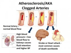 Atherosclerosis AKA clogged arteries